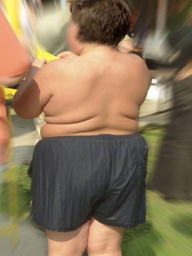 Foto copil obez