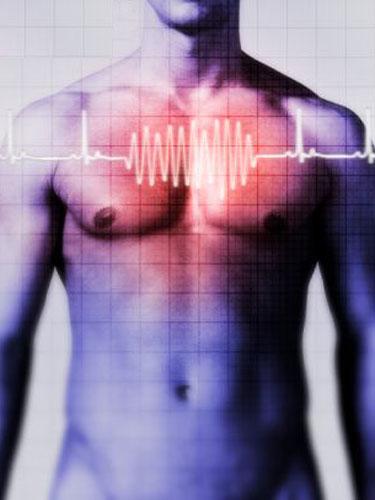 Foto cardiograma